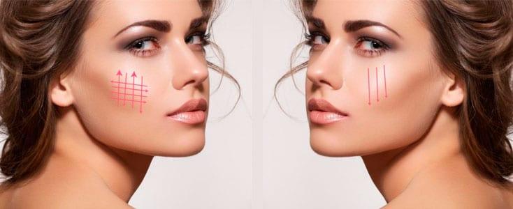 rostro de una mujer joven con indicación de los efectos de los mini threads