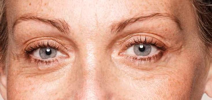 detalle de los ojos de una mujer antes de un tratamiento para las patas de gallo
