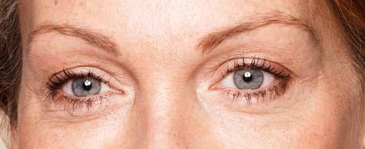 detalle de los ojos de una mujer despues de un tratamiento para las patas de gallo