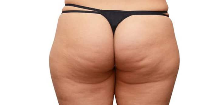 nalgas de una mujer con celulitis antes de la sesion con mesoterapia