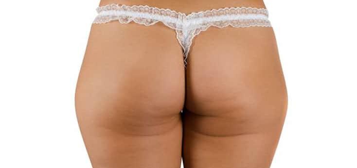 nalgas de una mujer con celulitis despues de la sesion con mesoterapia