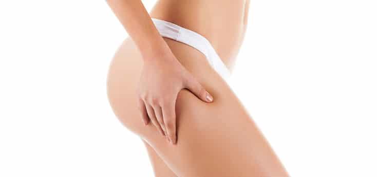 cuerpo lateral de mujer joven, esbelta pellizcandose el muslo