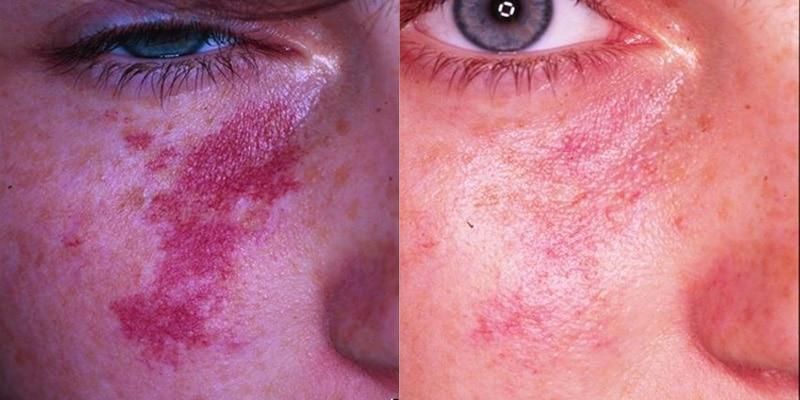 Lesiones vasculares y pigmentadas (hemangioma)