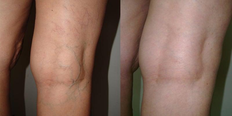 Lesiones Vasculares ( varices en piernas)