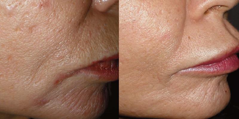 Arruga peribucal con Laser Erbio