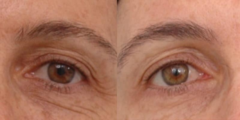 Arruga periocular con Laser Erbio