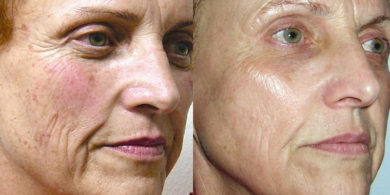 Tratamiento resurfacing · Antes y después