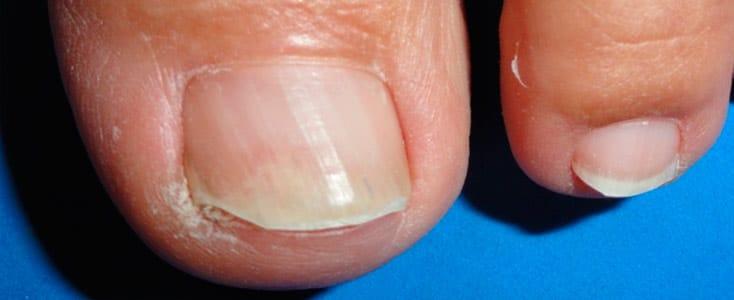 caso de medicina estetica hongos en la uñas onicomicosis dye-fungus 1 mes despues de 6 sesiones
