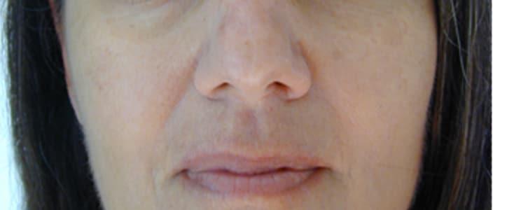 tratamiento lesiones pigmentadas despues