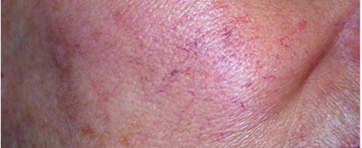 tratamientos lesiones vasulares despues