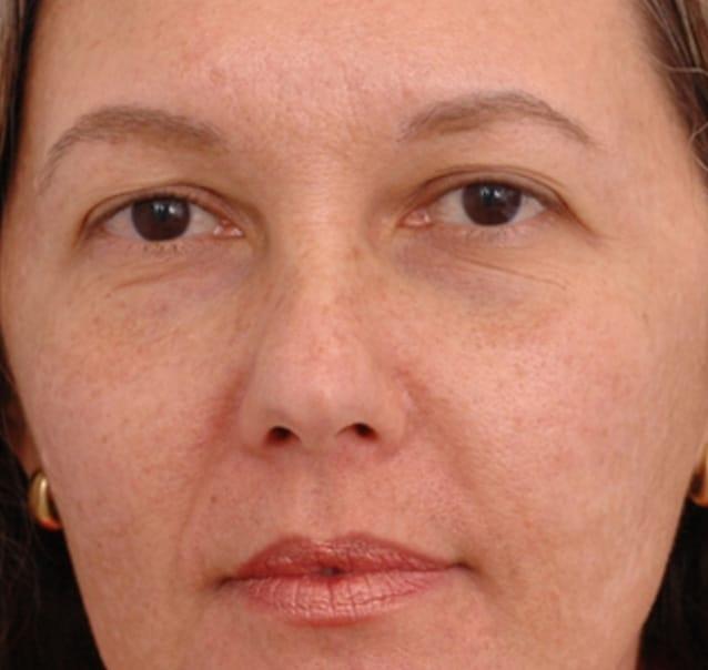 medicina estetica rejuvenecimiento facial despues