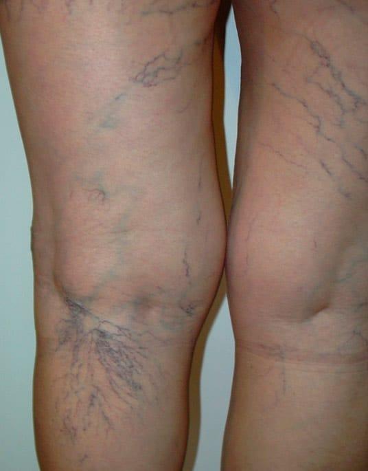 tratamientos estetica varices arañas antes