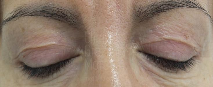 blefaropastia facial sin cirugía antes y después