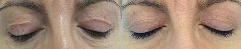 Blefaroplastia sin cirugía (II) · Antes y después