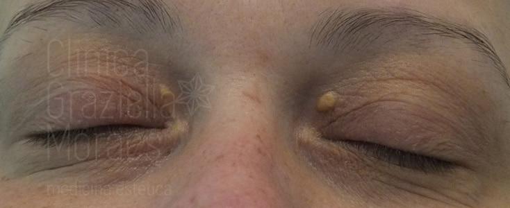 xantelasma facial antes