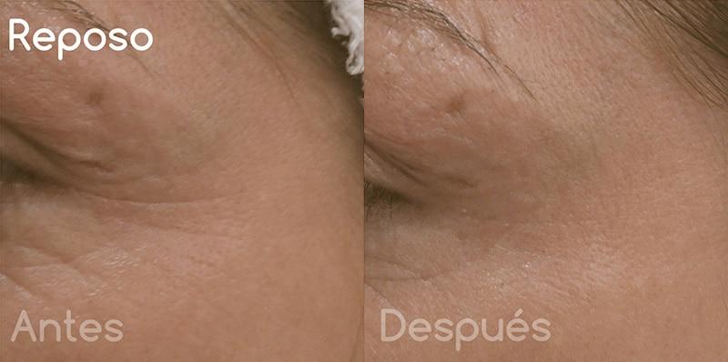 Toxina botulínica en arrugas perioculares · En reposo · Antes y después