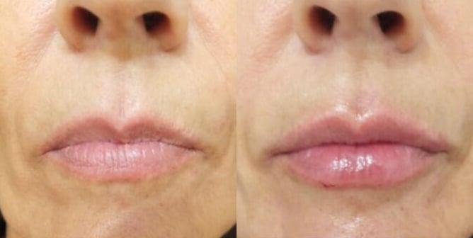 Voluminización de labios (I) · Antes y Después