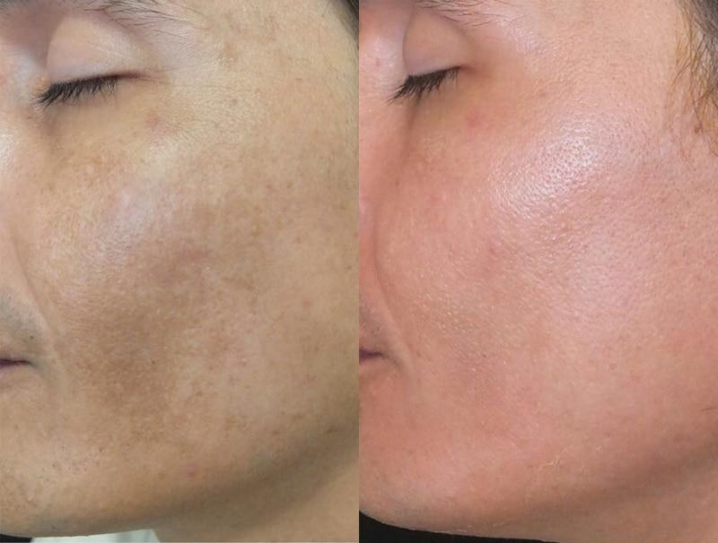 Peeling Multilayer · después de un mes de tratamiento