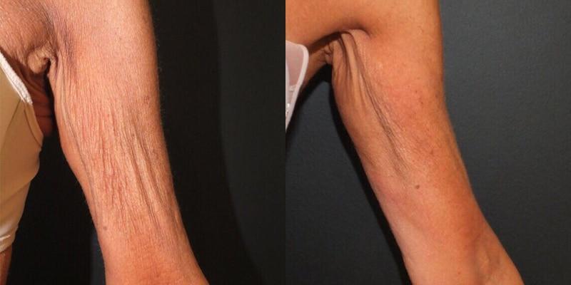 Tratamiento para la flacidez de brazos · IMPERIUM MED 400 · Resultado con 12 sesiones