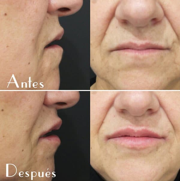 Voluminización de labios (III)
