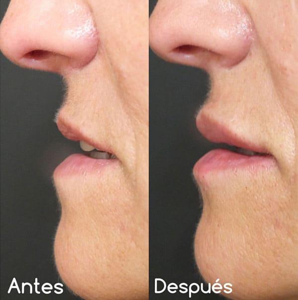 Voluminización de labios (VI)