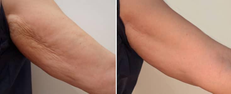 imagen de un brazo antes y despues de sesiones con hidroxiapatita calcica