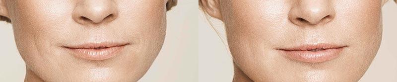 Arrugas mejilla · Antes y después