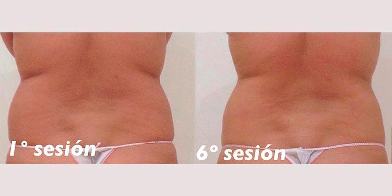 Reducción de volumen de abdomen · 1ª sesión y 6ª sesión