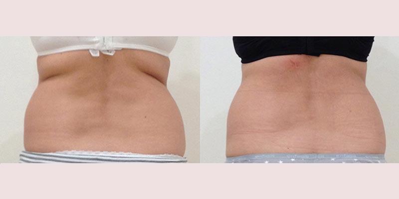 Tratamiento post parto · Antes y después de 6 sesiones