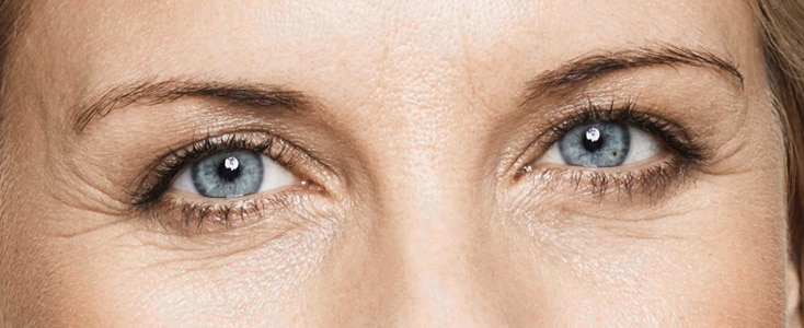 detalle de los ojos de una mujer antes de tratar las arrugas del entrecejo