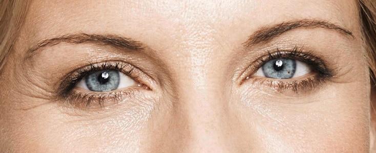 detalle de los ojos de una mujer despues de tratar las arrugas del entrecejo