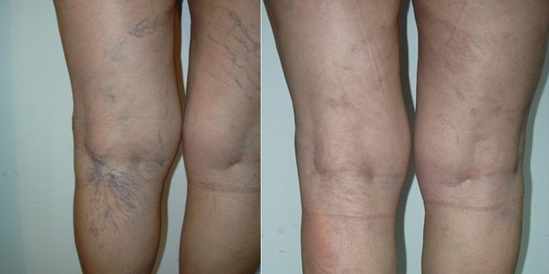 Lesiones Vasculares (arañas vasculares en piernas)