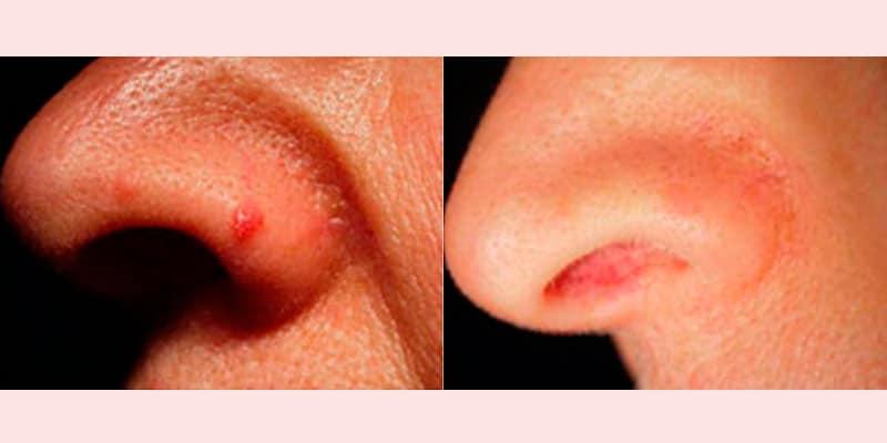 Eliminación Hemangioma · Antes y depués de 5 sesiones
