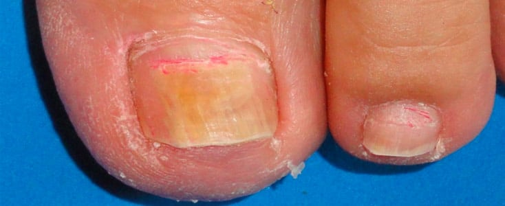 caso de medicina estetica hongos en la uñas onicomicosis dye-fungus antes