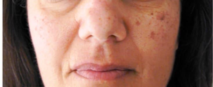 tratamiento lesiones pigmentadas antes