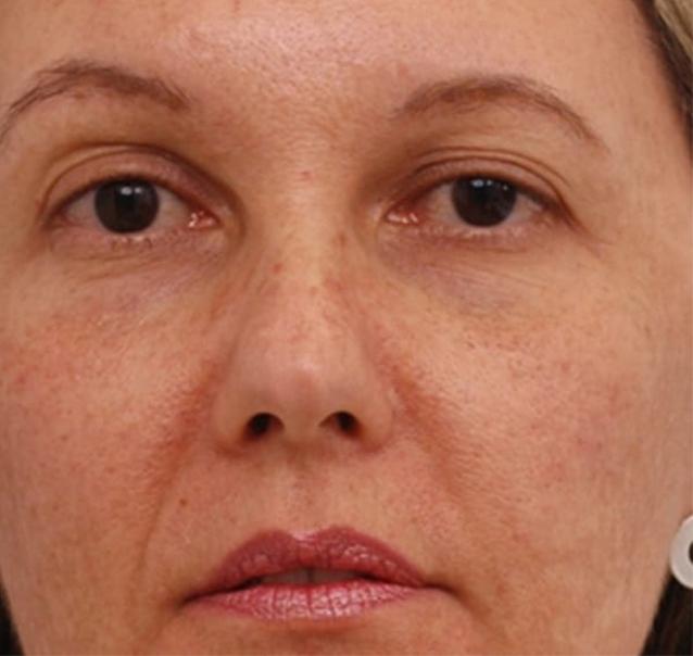 medicina estetica rejuvenecimiento facial antes
