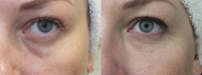 Relleno de ojeras con hialurónico · Antes y después