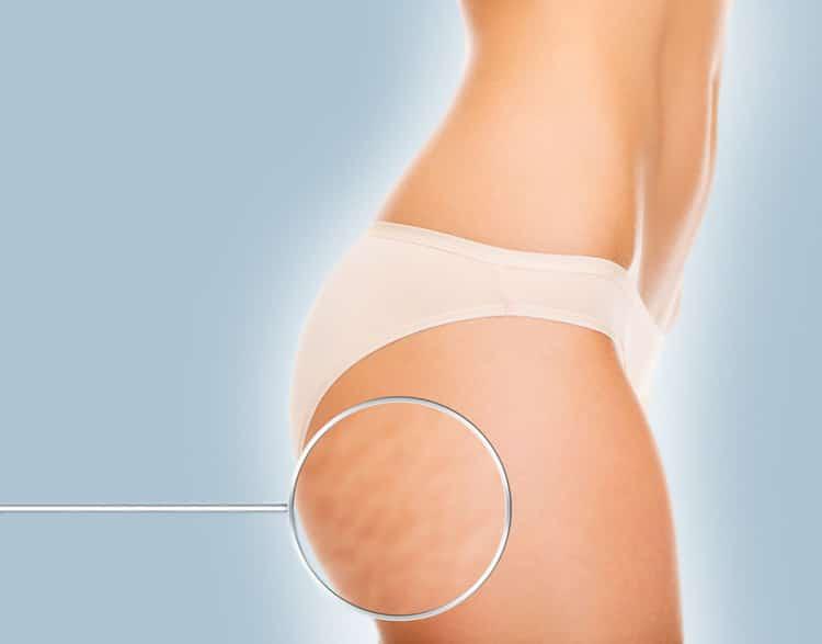 mesoterapia corporal clínica graziella moraes medicina estética corporal