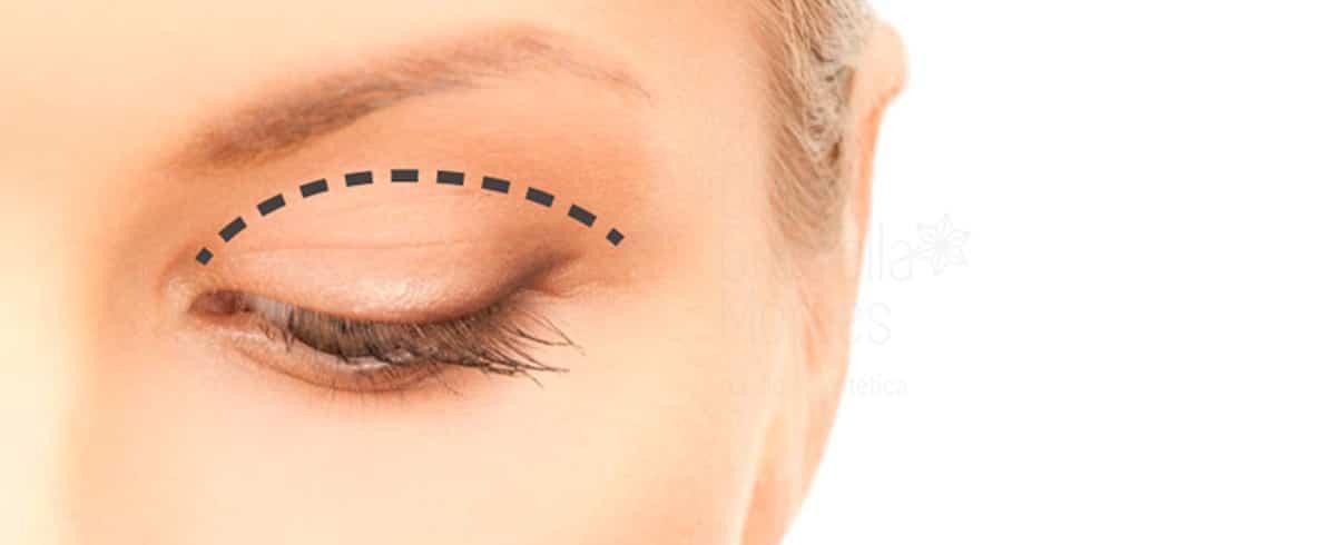 blefaropastia facial sin cirugía
