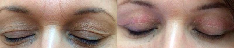 Blefaroplastia sin cirugía · Antes y después
