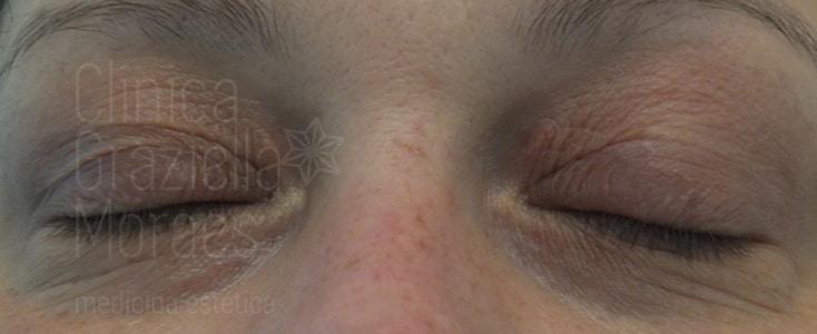 Xantelasma facial después