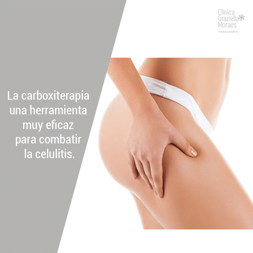 Y carboxiterapia cicatrices despues antes