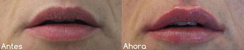 Remodelación de labios · Antes y después