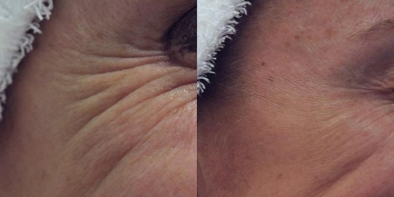Toxina botulínica en arrugas perioculares · En movimiento · Antes y después