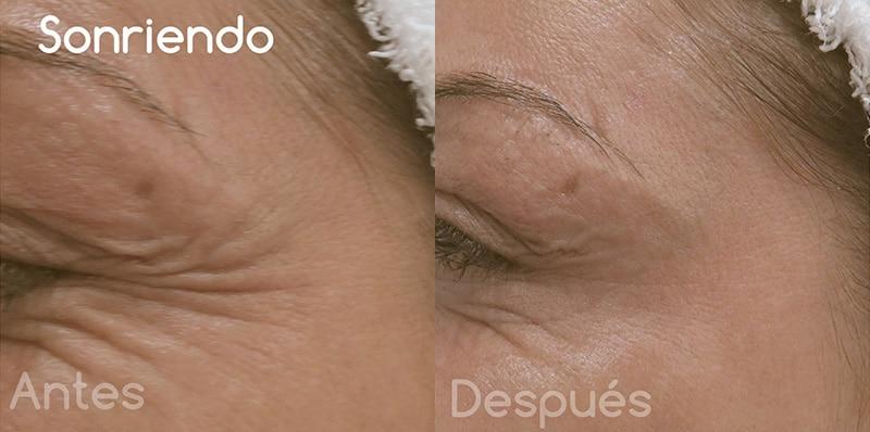 Toxina botulínica en arrugas perioculares · Sonriendo · Antes y después