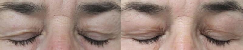 Blefaroplastia sin cirugía (III) · Antes y después