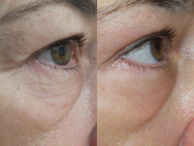 Blefaroplastia sin cirugía en párpado superior y inferior · después de una sesión