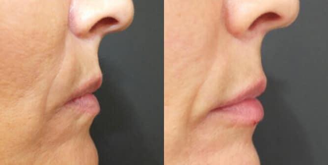 Voluminización de labios (II) · Antes y Después