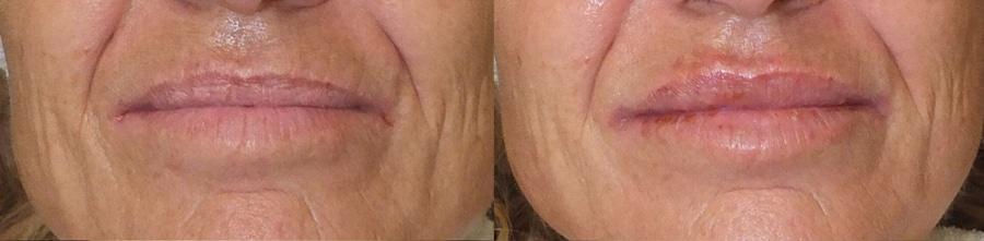 Voluminización de labios con hialurónico (II)