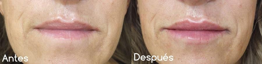 Voluminización de labios con hialurónico (I)